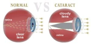 issues caused by cataracts